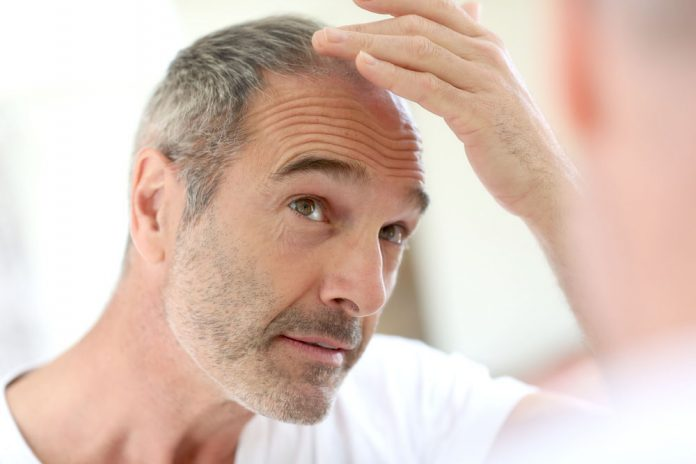 hair-loss-male-pattern-baldness-procerin-review