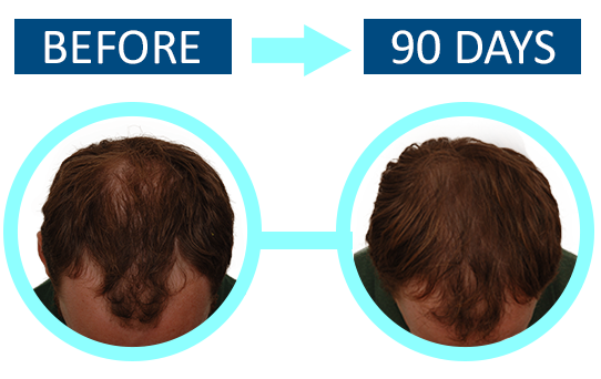 procerin-results