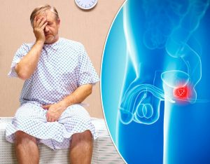best-prostate-pills-prevent-prostate-cancer-supplements-reviews