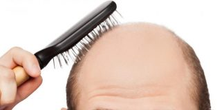 male-pattern-baldness-nail-fungus-problems