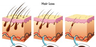 hair loss vitamin E