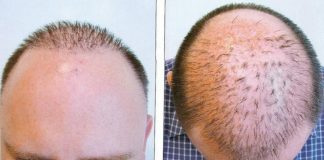 Characteristics of Hair Loss