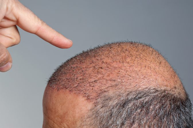 Risk of Hair Transplant